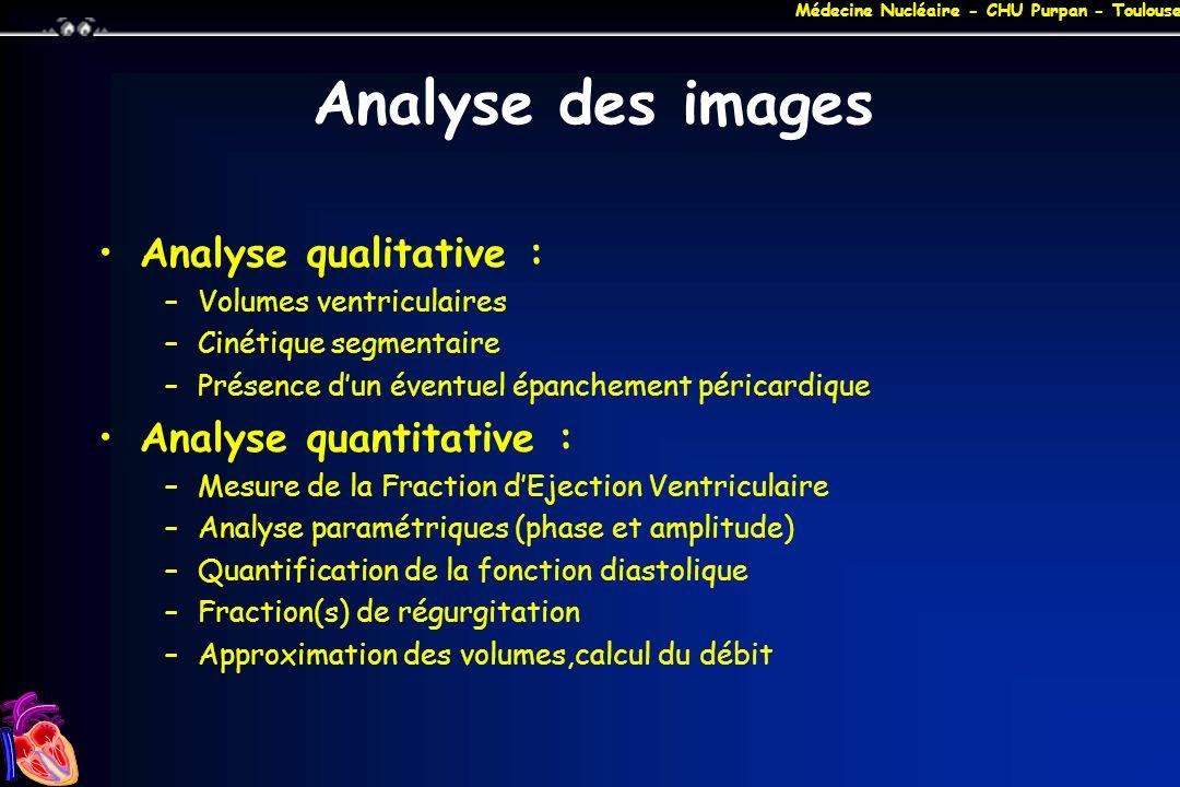 Médecine Nucléaire - CHU Purpan - Toulouse Analyse des images Analyse qualitative : –Volumes ventriculaires –Cinétique segmentaire –Présence dun évent
