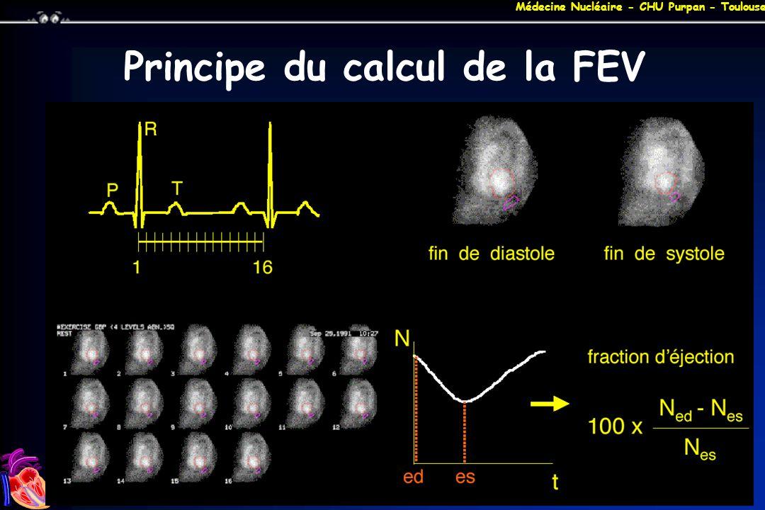 Médecine Nucléaire - CHU Purpan - Toulouse Principe du calcul de la FEV