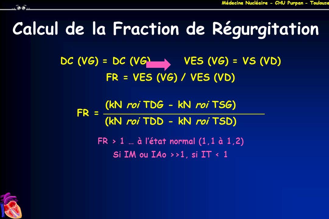 Médecine Nucléaire - CHU Purpan - Toulouse Calcul de la Fraction de Régurgitation DC (VG) = DC (VG)VES (VG) = VS (VD) FR = VES (VG) / VES (VD) (kN roi