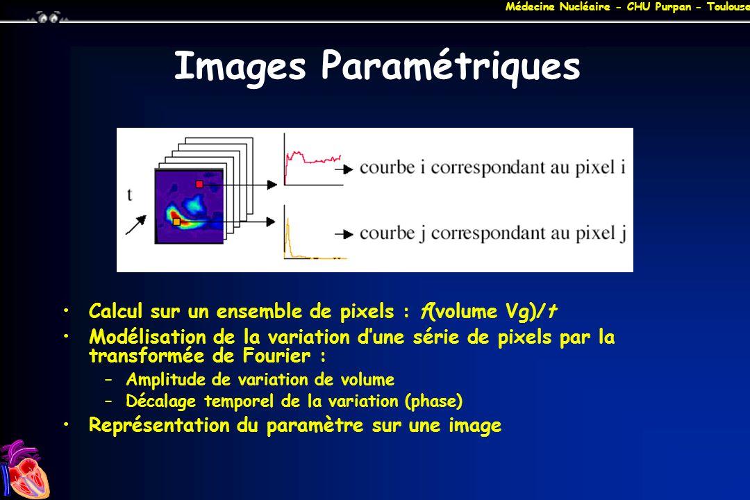 Médecine Nucléaire - CHU Purpan - Toulouse Images Paramétriques Calcul sur un ensemble de pixels : f(volume Vg)/t Modélisation de la variation dune sé