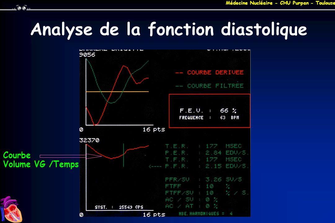 Médecine Nucléaire - CHU Purpan - Toulouse Analyse de la fonction diastolique Courbe Volume VG /Temps