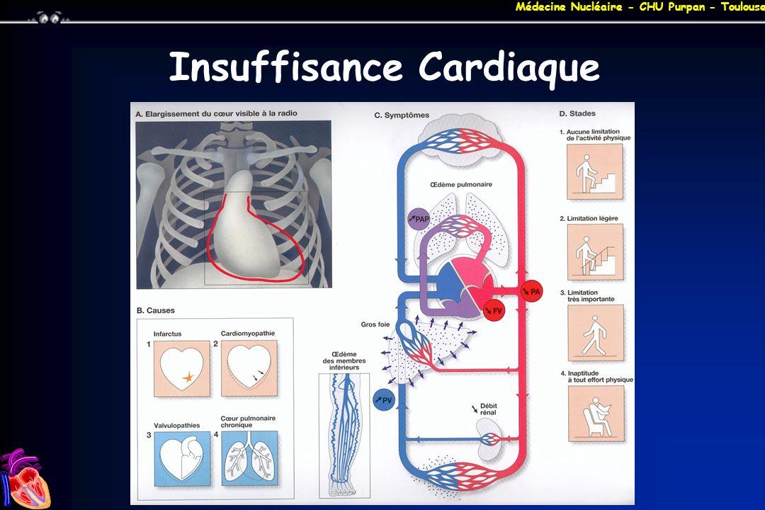 Médecine Nucléaire - CHU Purpan - Toulouse ICC : DVG SYSTOLIQUE Diagnostic : –signes congestifs + FEVG < 40 % Epidémiologie : –> 70 % des insuffisants cardiaques Etiologies : –insuffisance coronaire –HTA –myocardiopathie dilatée primitive