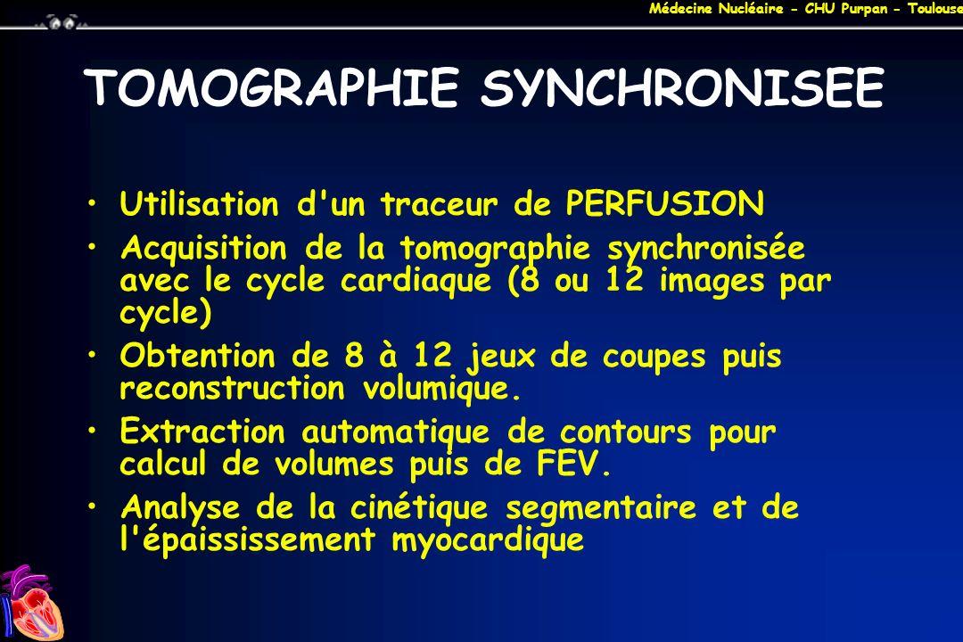 Médecine Nucléaire - CHU Purpan - Toulouse TOMOGRAPHIE SYNCHRONISEE Utilisation d'un traceur de PERFUSION Acquisition de la tomographie synchronisée a