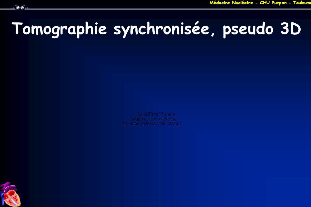 Médecine Nucléaire - CHU Purpan - Toulouse Tomographie synchronisée, pseudo 3D