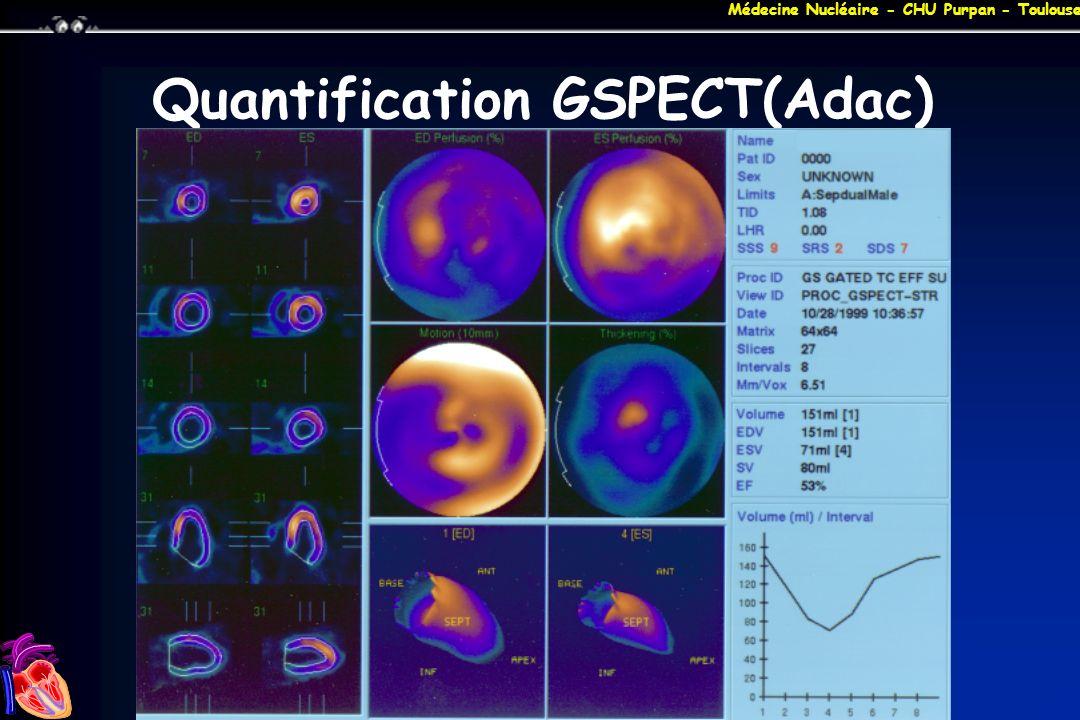 Médecine Nucléaire - CHU Purpan - Toulouse Quantification GSPECT(Adac)