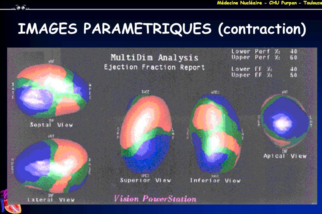 Médecine Nucléaire - CHU Purpan - Toulouse IMAGES PARAMETRIQUES (contraction)