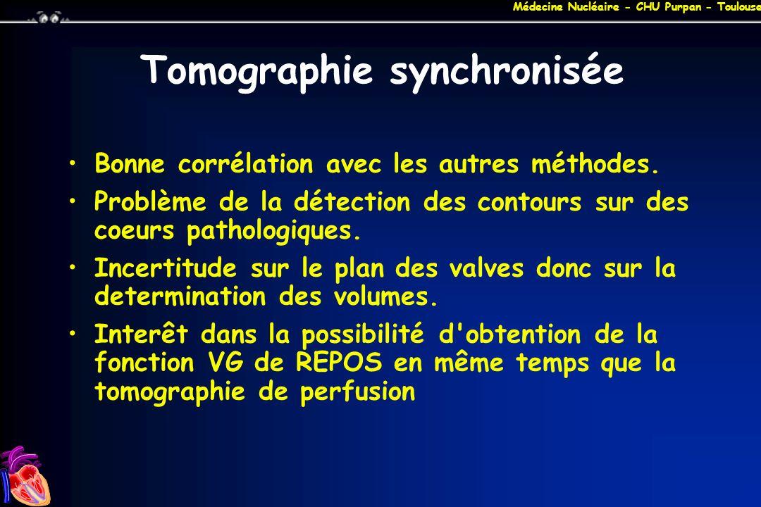 Médecine Nucléaire - CHU Purpan - Toulouse Tomographie synchronisée Bonne corrélation avec les autres méthodes. Problème de la détection des contours