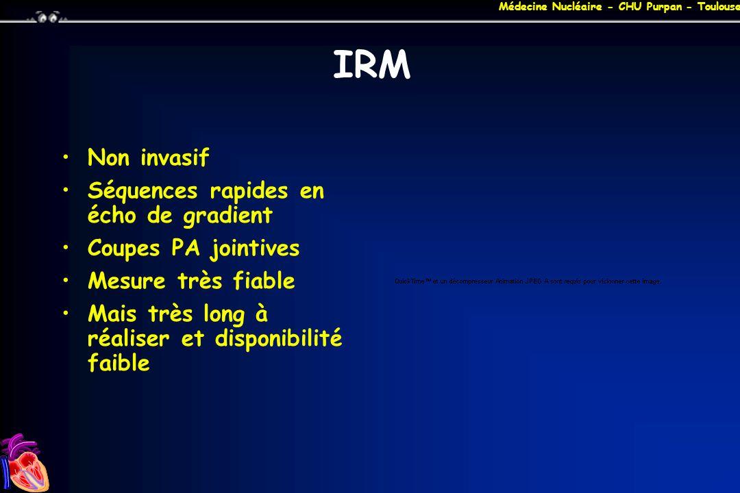 Médecine Nucléaire - CHU Purpan - Toulouse IRM Non invasif Séquences rapides en écho de gradient Coupes PA jointives Mesure très fiable Mais très long