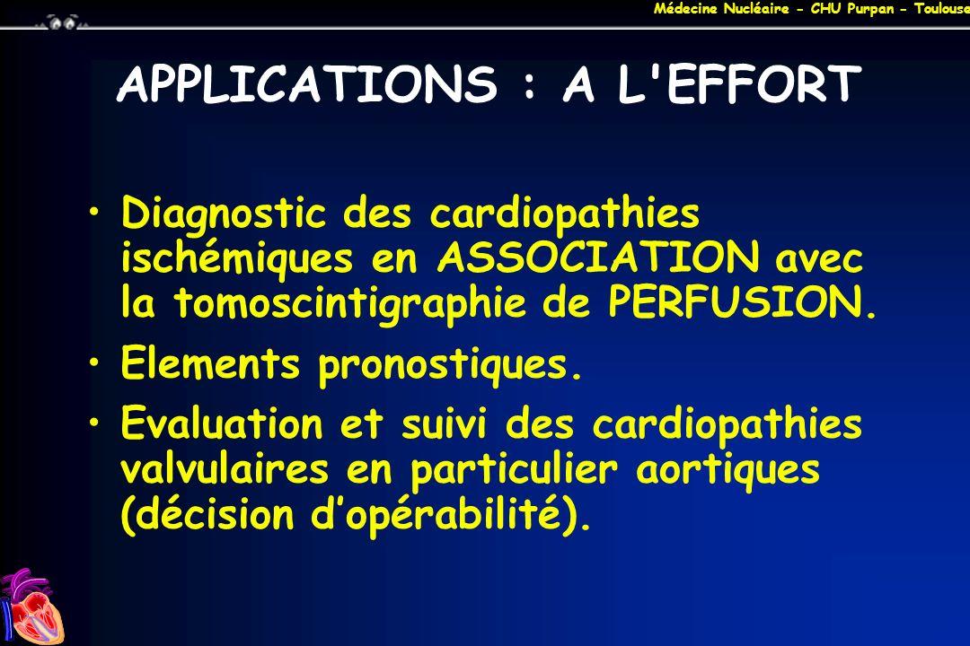 Médecine Nucléaire - CHU Purpan - Toulouse APPLICATIONS : A L'EFFORT Diagnostic des cardiopathies ischémiques en ASSOCIATION avec la tomoscintigraphie