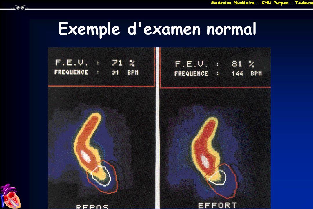 Médecine Nucléaire - CHU Purpan - Toulouse Exemple d'examen normal