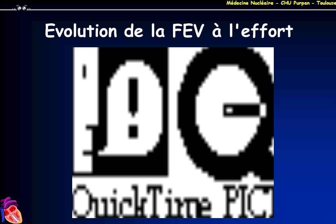 Médecine Nucléaire - CHU Purpan - Toulouse Evolution de la FEV à l'effort