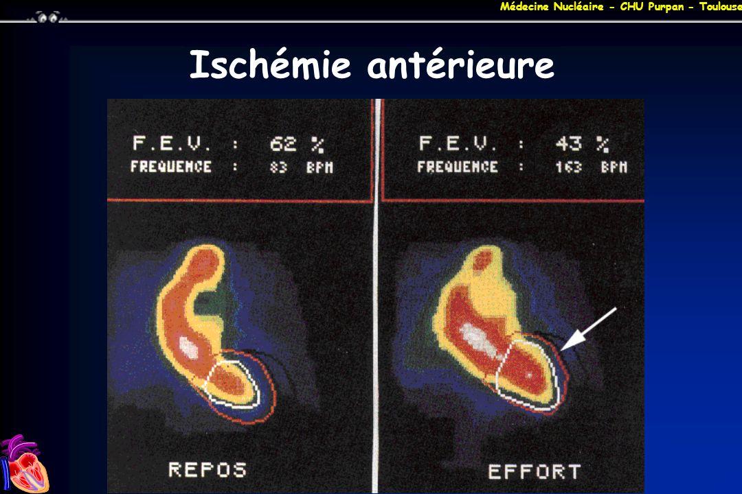 Médecine Nucléaire - CHU Purpan - Toulouse Ischémie antérieure