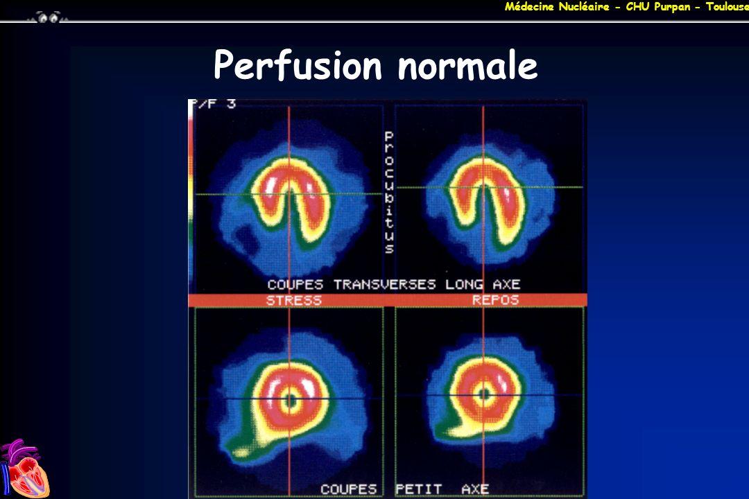 Médecine Nucléaire - CHU Purpan - Toulouse Perfusion normale