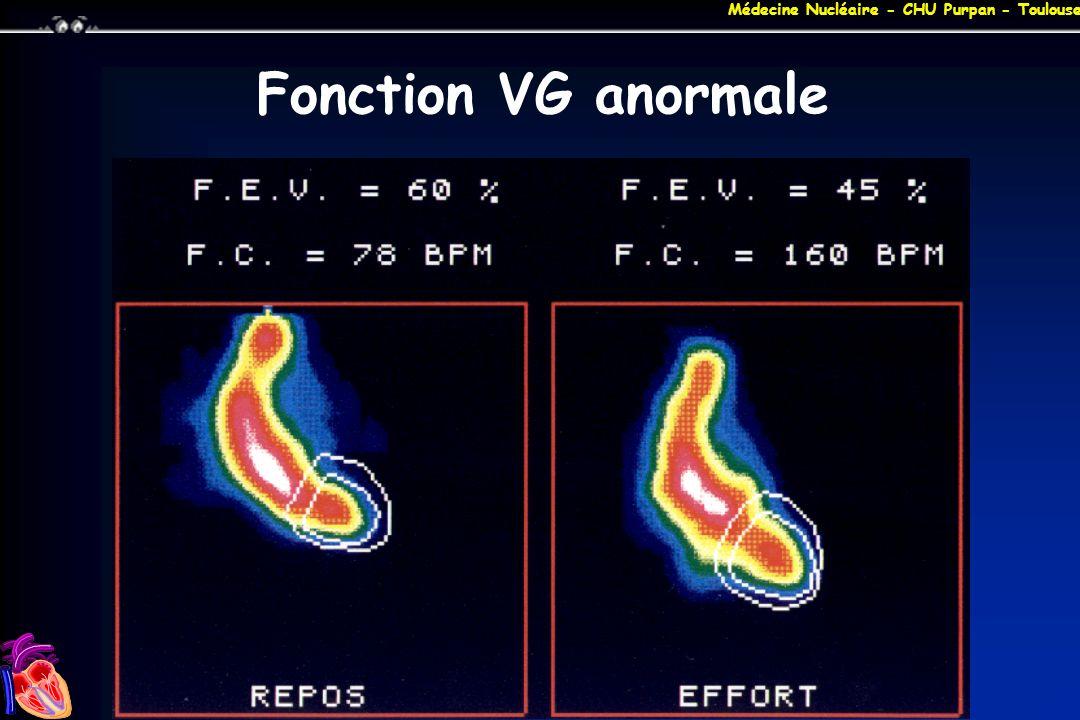 Médecine Nucléaire - CHU Purpan - Toulouse Fonction VG anormale