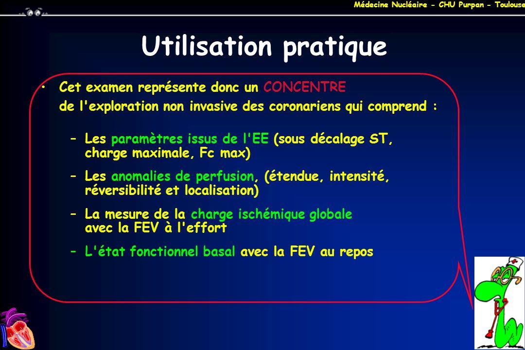 Médecine Nucléaire - CHU Purpan - Toulouse Utilisation pratique Cet examen représente donc un CONCENTRE de l'exploration non invasive des coronariens
