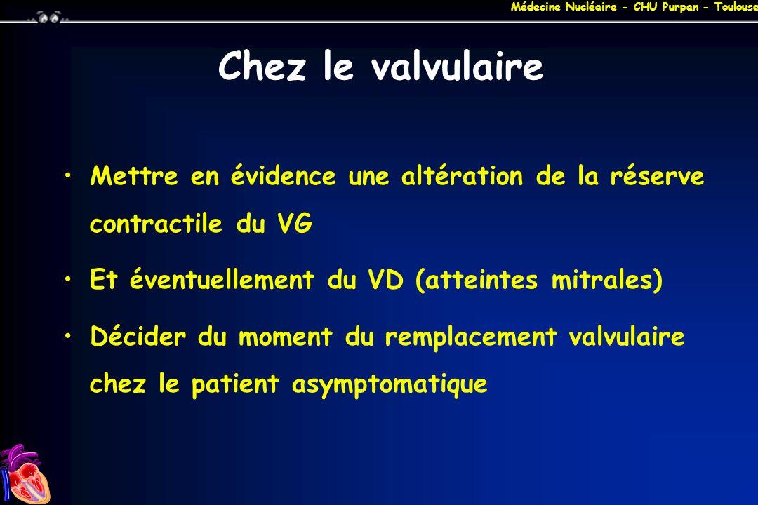 Médecine Nucléaire - CHU Purpan - Toulouse Chez le valvulaire Mettre en évidence une altération de la réserve contractile du VG Et éventuellement du V