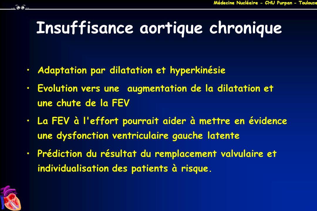 Médecine Nucléaire - CHU Purpan - Toulouse Insuffisance aortique chronique Adaptation par dilatation et hyperkinésie Evolution vers une augmentation d