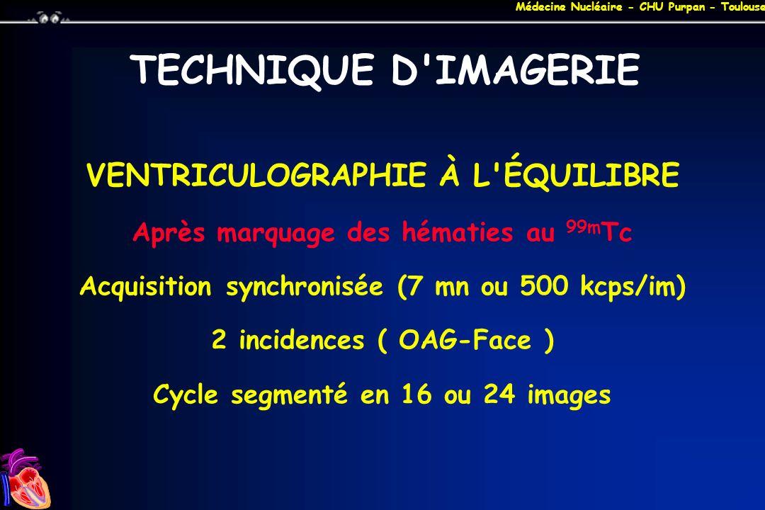 Médecine Nucléaire - CHU Purpan - Toulouse Angiographie VG iodée 1 er temps de la coronarographie Injection diode +++ Vue planaire 1 incidence par injection Calcul par méthodes géométriques Surestimation FEV fréquente