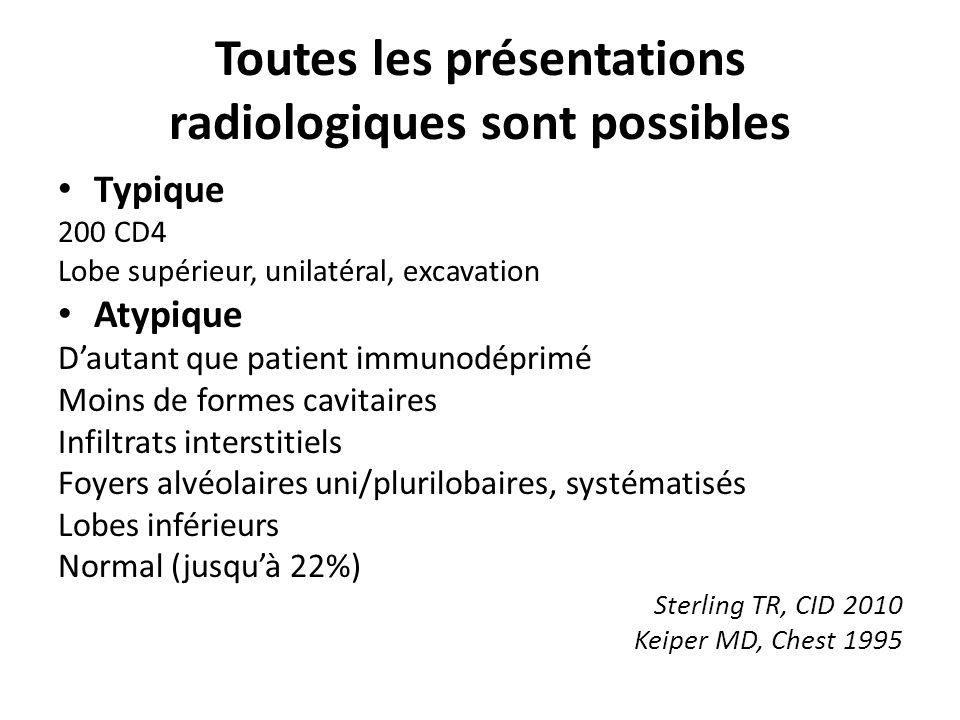Toutes les présentations radiologiques sont possibles Typique 200 CD4 Lobe supérieur, unilatéral, excavation Atypique Dautant que patient immunodéprimé Moins de formes cavitaires Infiltrats interstitiels Foyers alvéolaires uni/plurilobaires, systématisés Lobes inférieurs Normal (jusquà 22%) Sterling TR, CID 2010 Keiper MD, Chest 1995