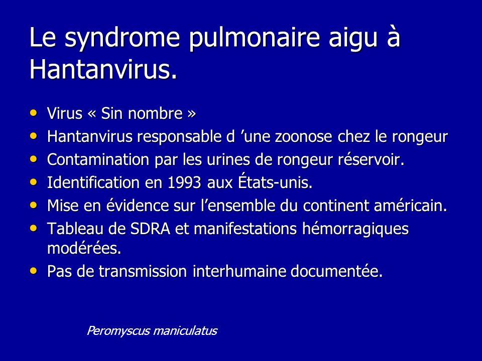 Le syndrome pulmonaire aigu à Hantanvirus. Virus « Sin nombre » Virus « Sin nombre » Hantanvirus responsable d une zoonose chez le rongeur Hantanvirus