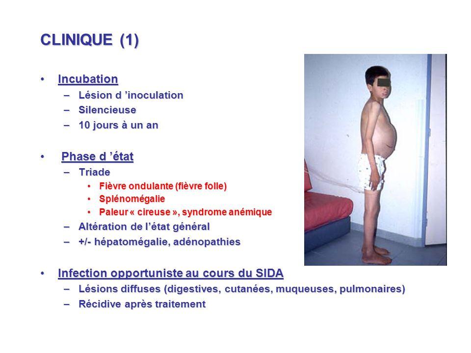 CLINIQUE (1) IncubationIncubation –Lésion d inoculation –Silencieuse –10 jours à un an Phase d état Phase d état –Triade Fièvre ondulante (fièvre folle)Fièvre ondulante (fièvre folle) SplénomégalieSplénomégalie Paleur « cireuse », syndrome anémiquePaleur « cireuse », syndrome anémique –Altération de létat général –+/- hépatomégalie, adénopathies Infection opportuniste au cours du SIDAInfection opportuniste au cours du SIDA –Lésions diffuses (digestives, cutanées, muqueuses, pulmonaires) –Récidive après traitement