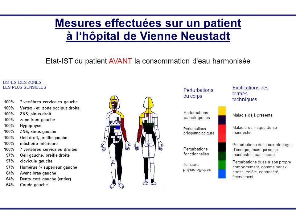 100% 7 vertèbres cervicales gauche 100% Vertex - et zone occiput droite 100% ZNS, sinus droit 100% zone front gauche 100% Hypophyse 100% ZNS, sinus ga