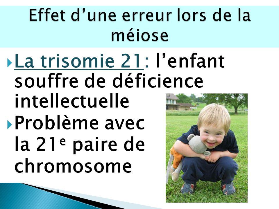 La trisomie 21: lenfant souffre de déficience intellectuelle Problème avec la 21 e paire de chromosome