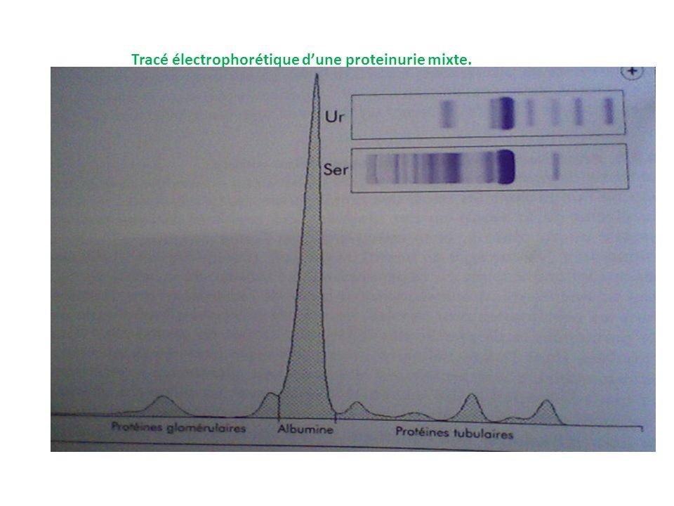 Tracé électrophorétique dune proteinurie mixte.