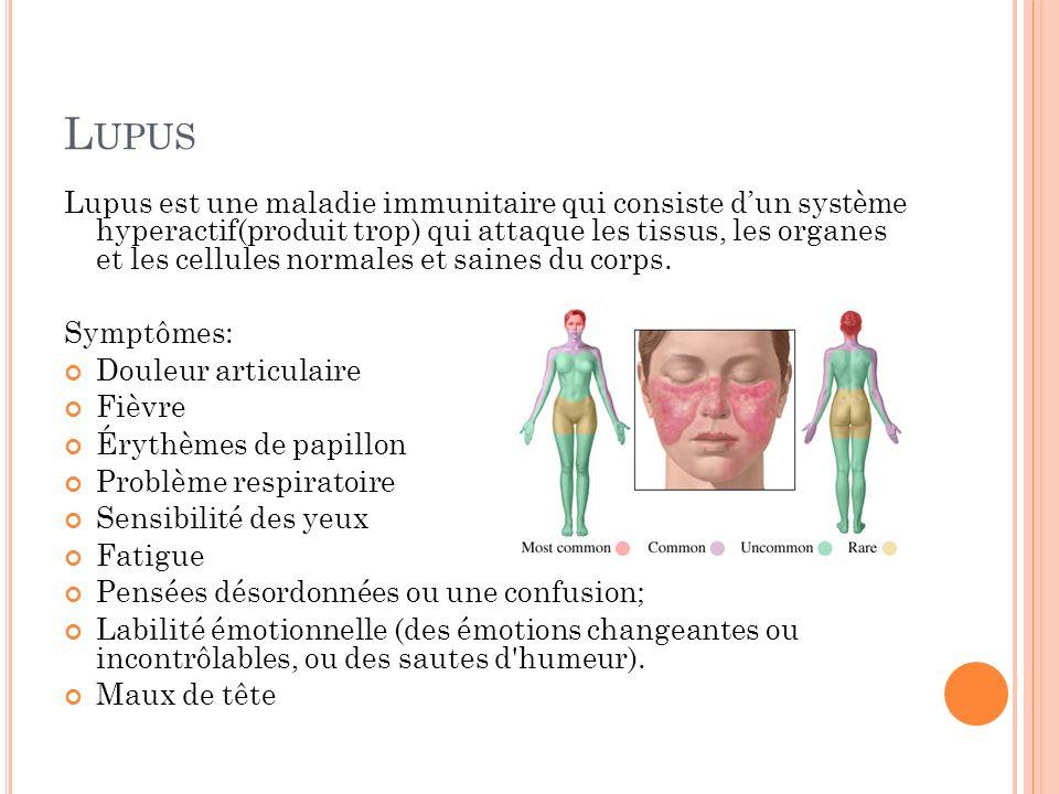 L UPUS Lupus est une maladie immunitaire qui consiste dun système hyperactif(produit trop) qui attaque les tissus, les organes et les cellules normale