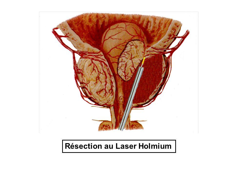 Résection au Laser Holmium