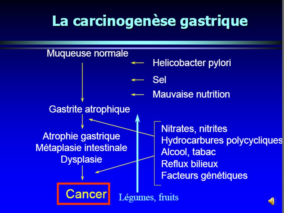 WORLD 63.2 % gastric cancer cases (590,000) Developing countries: 64% cases (399,000)