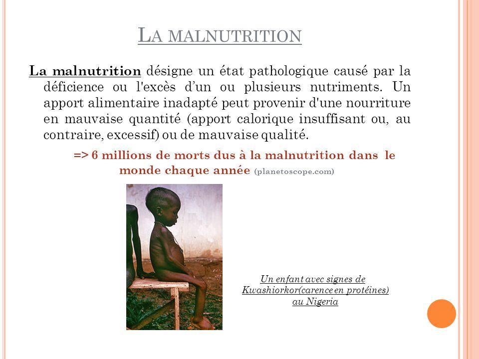 L A MALNUTRITION La malnutrition désigne un état pathologique causé par la déficience ou l'excès dun ou plusieurs nutriments. Un apport alimentaire in