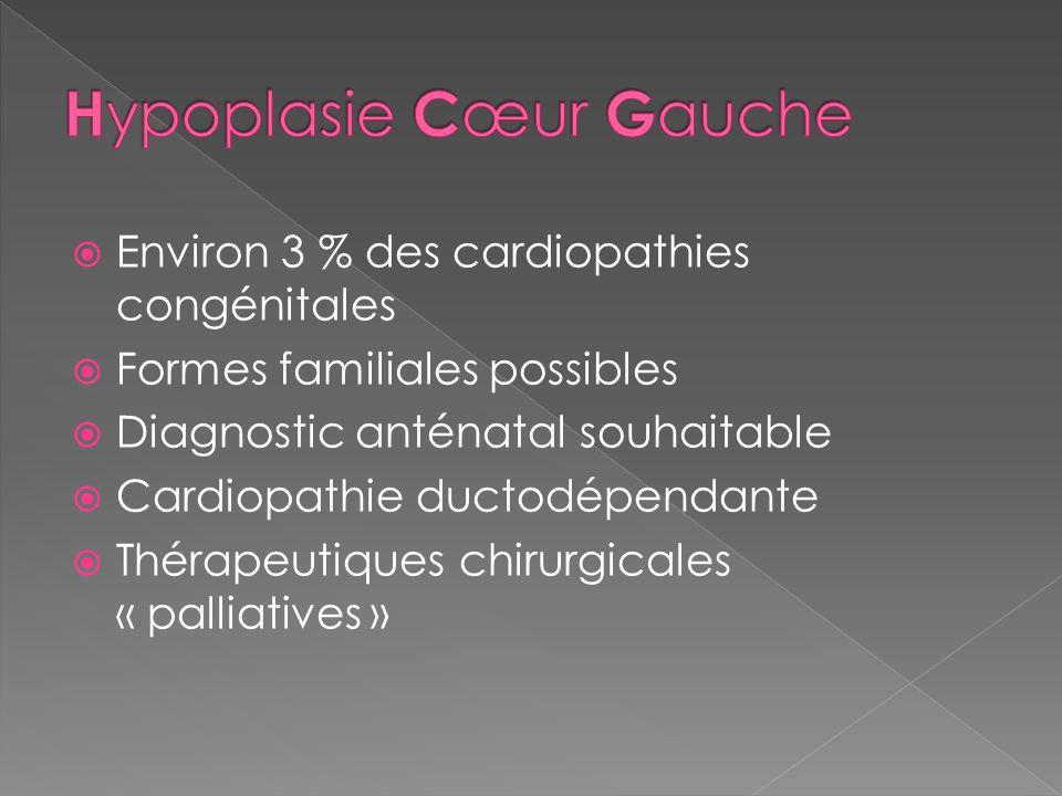 Environ 3 % des cardiopathies congénitales Formes familiales possibles Diagnostic anténatal souhaitable Cardiopathie ductodépendante Thérapeutiques ch