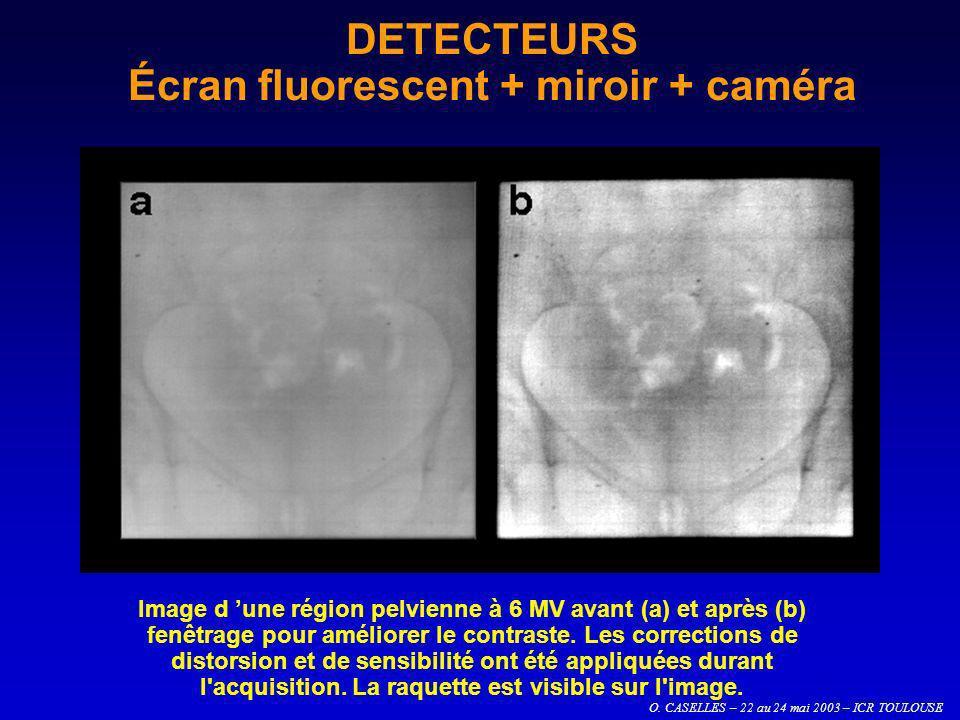 O. CASELLES – 22 au 24 mai 2003 – ICR TOULOUSE DETECTEURS Écran fluorescent + miroir + caméra Image d une région pelvienne à 6 MV avant (a) et après (