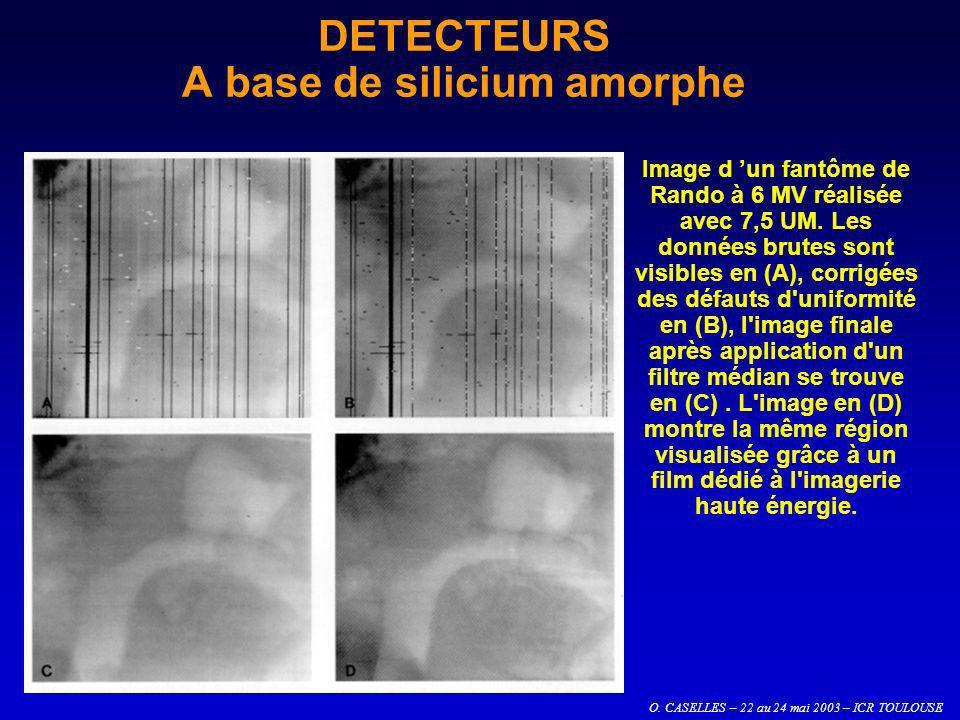O. CASELLES – 22 au 24 mai 2003 – ICR TOULOUSE DETECTEURS A base de silicium amorphe Image d un fantôme de Rando à 6 MV réalisée avec 7,5 UM. Les donn