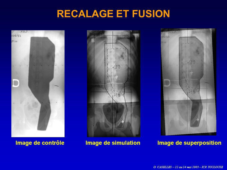 O. CASELLES – 22 au 24 mai 2003 – ICR TOULOUSE Image de contrôleImage de simulationImage de superposition RECALAGE ET FUSION