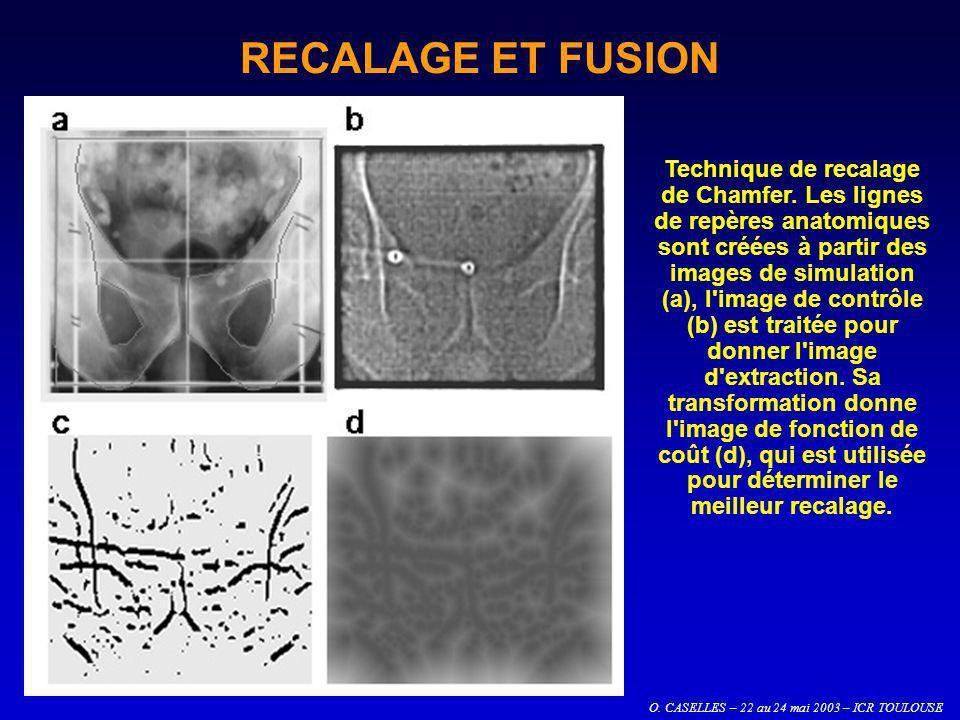 O. CASELLES – 22 au 24 mai 2003 – ICR TOULOUSE RECALAGE ET FUSION Technique de recalage de Chamfer. Les lignes de repères anatomiques sont créées à pa