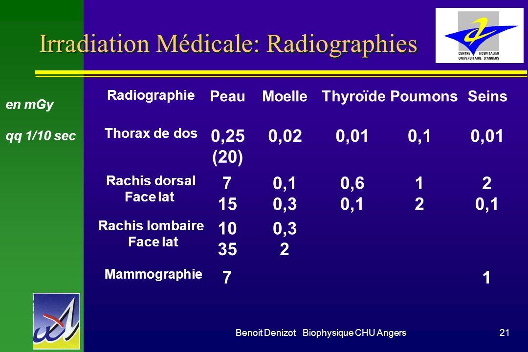 Benoit Denizot Biophysique CHU Angers20 Irradiation par le radon 222 n Pb caves non ventilées en terrains primaires n Pb tabac (K poumon si > 400 Bq/m