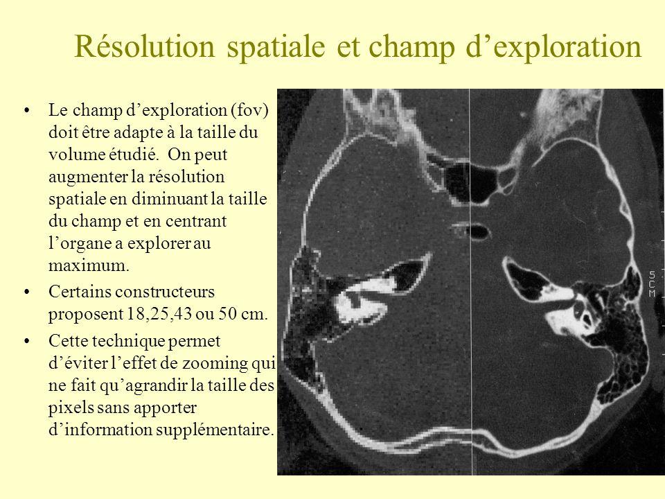Résolution spatiale et champ dexploration Le champ dexploration (fov) doit être adapte à la taille du volume étudié. On peut augmenter la résolution s