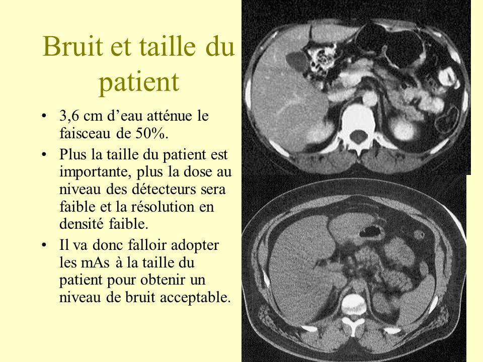 Bruit et taille du patient 3,6 cm deau atténue le faisceau de 50%. Plus la taille du patient est importante, plus la dose au niveau des détecteurs ser