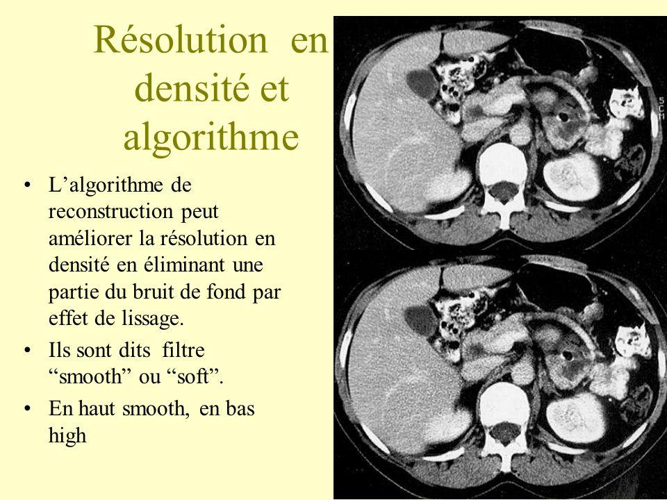 Résolution en densité et algorithme Lalgorithme de reconstruction peut améliorer la résolution en densité en éliminant une partie du bruit de fond par