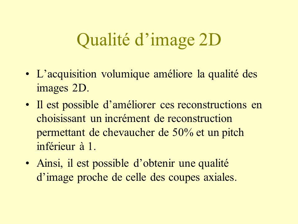 Qualité dimage 2D Lacquisition volumique améliore la qualité des images 2D. Il est possible daméliorer ces reconstructions en choisissant un incrément