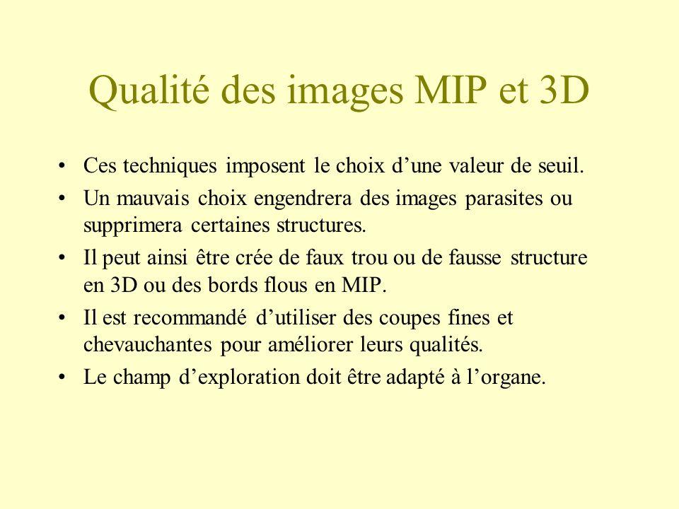 Qualité des images MIP et 3D Ces techniques imposent le choix dune valeur de seuil. Un mauvais choix engendrera des images parasites ou supprimera cer