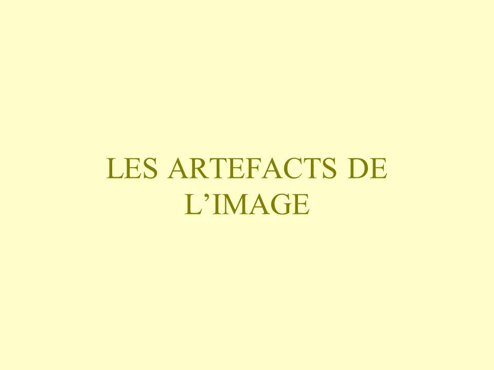 LES ARTEFACTS DE LIMAGE
