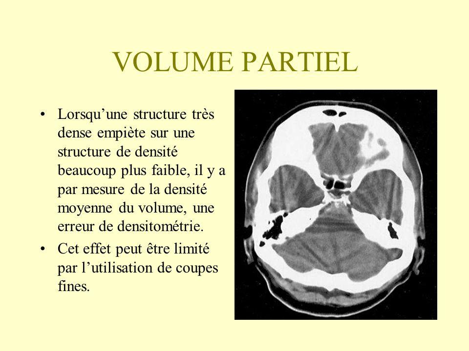 VOLUME PARTIEL Lorsquune structure très dense empiète sur une structure de densité beaucoup plus faible, il y a par mesure de la densité moyenne du vo