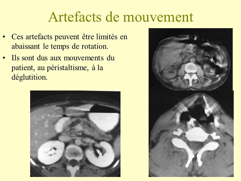 Artefacts de mouvement Ces artefacts peuvent être limités en abaissant le temps de rotation. Ils sont dus aux mouvements du patient, au péristaltisme,