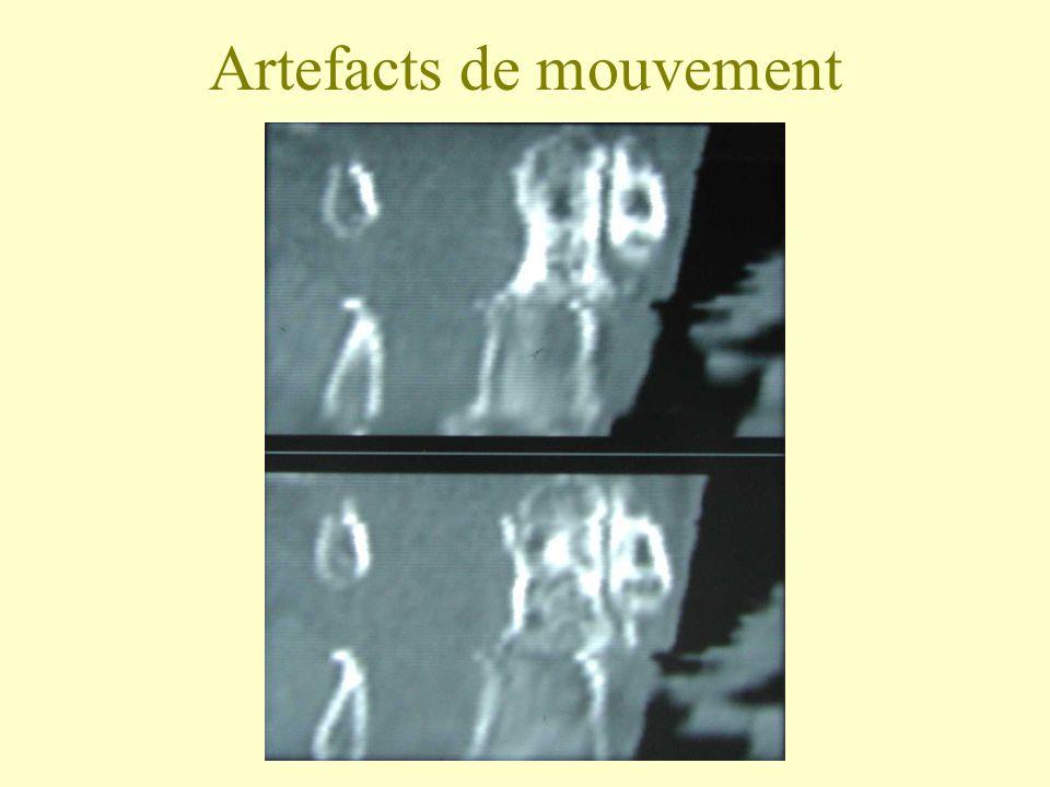 Artefacts de mouvement