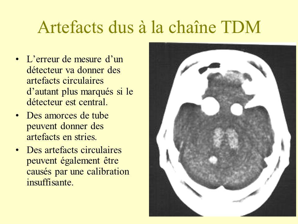 Artefacts dus à la chaîne TDM Lerreur de mesure dun détecteur va donner des artefacts circulaires dautant plus marqués si le détecteur est central. De