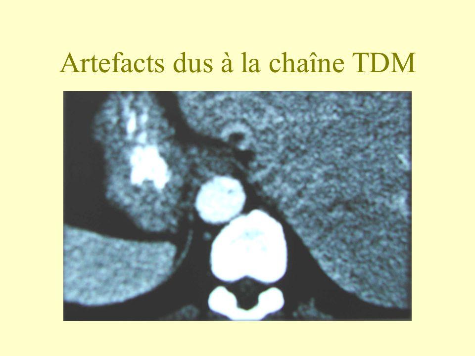 Artefacts dus à la chaîne TDM