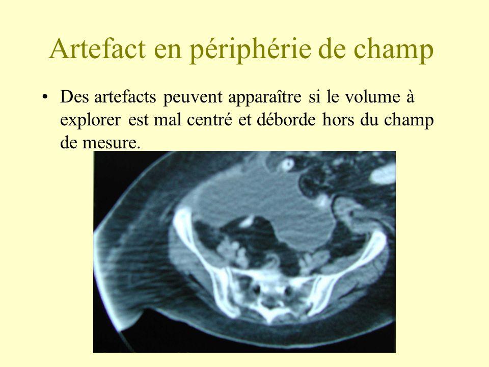 Artefact en périphérie de champ Des artefacts peuvent apparaître si le volume à explorer est mal centré et déborde hors du champ de mesure.